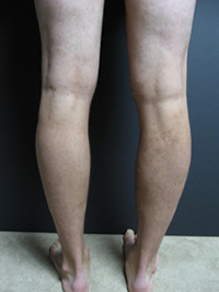 Varicose Veins Treatment Wooster